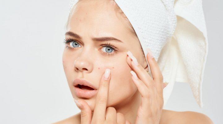 Три общих проблемы с кожей и как их лечить