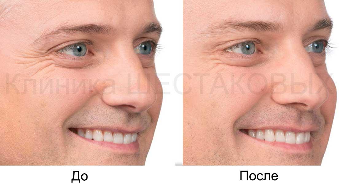 инъекции от морщин морщинистый лоб