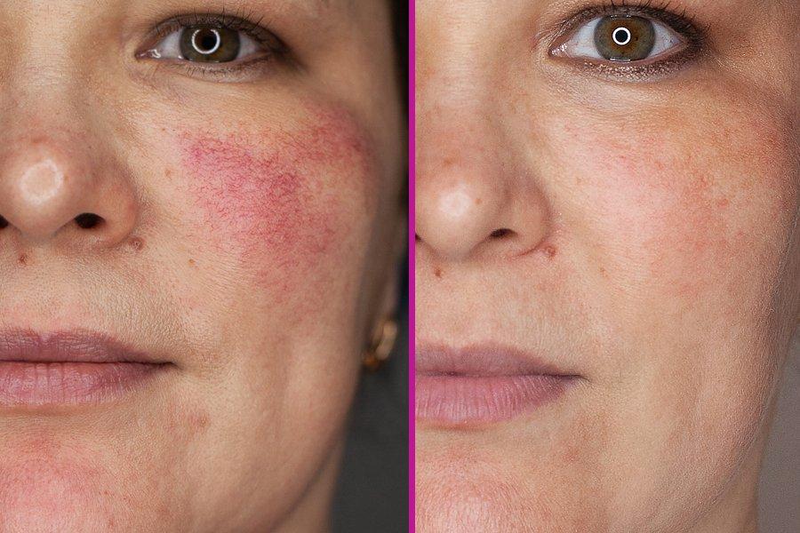 убрать сосуды кровеносные сосуды на лице и груди лазерное удаление внешними факторами