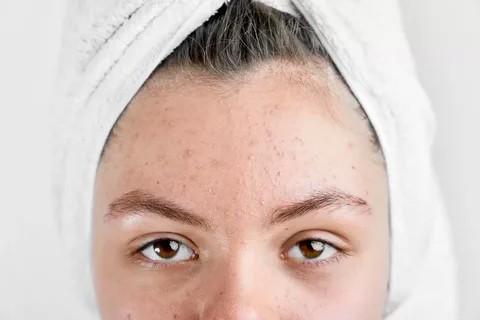 Взрослые прыщи передовых методов лечения кожи лечение угрей прыщей