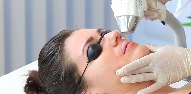 Лазерная эпиляция губы