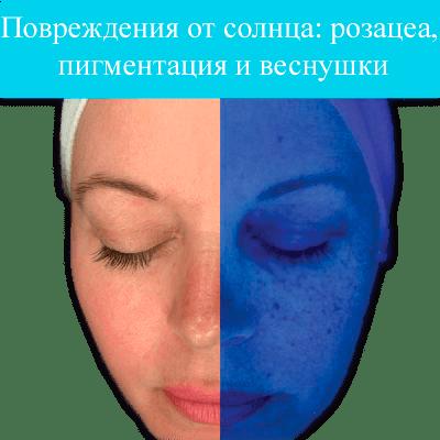 imagegallery_67_Observ-Tiles-21-400x400-1