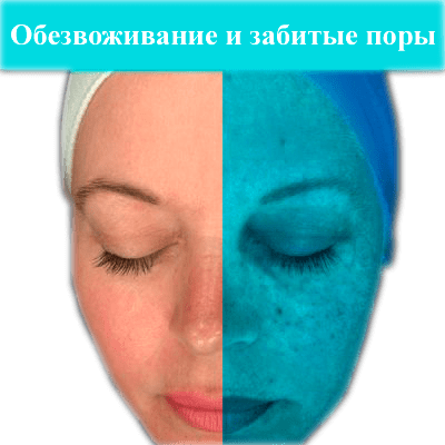 imagegallery_67_Observ-Tiles-3-400x400-1