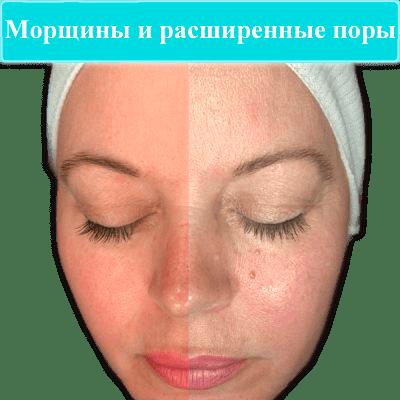 imagegallery_67_Observ-Tiles-4-400x400-1