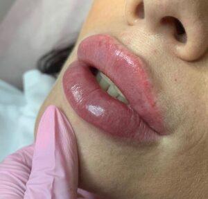Техника увеличеня губ