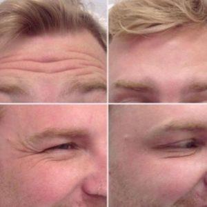 Инъекции против морщин улучшить внешний вид Инъекционные препараты для мужчин