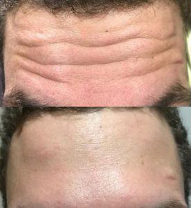 Инъекции против морщин улучшить внешний вид