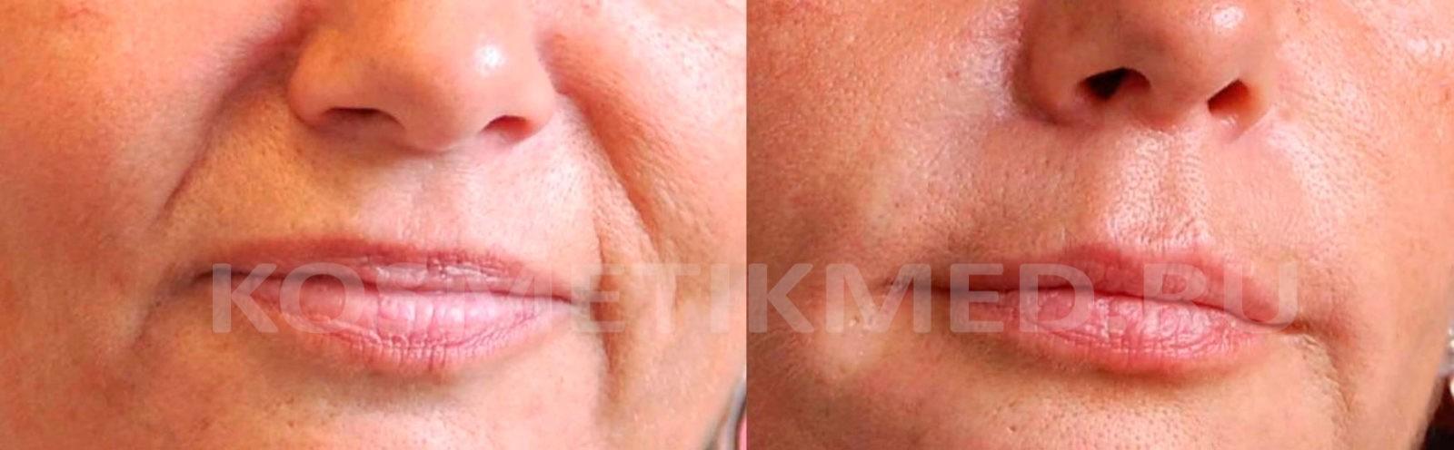 Носогубные складки уголков рта до подбородка