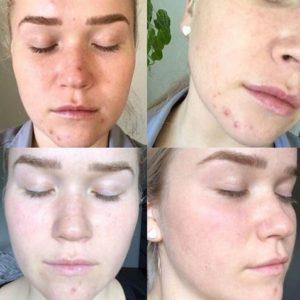 Всё о прыщах передовых методов лечения кожи