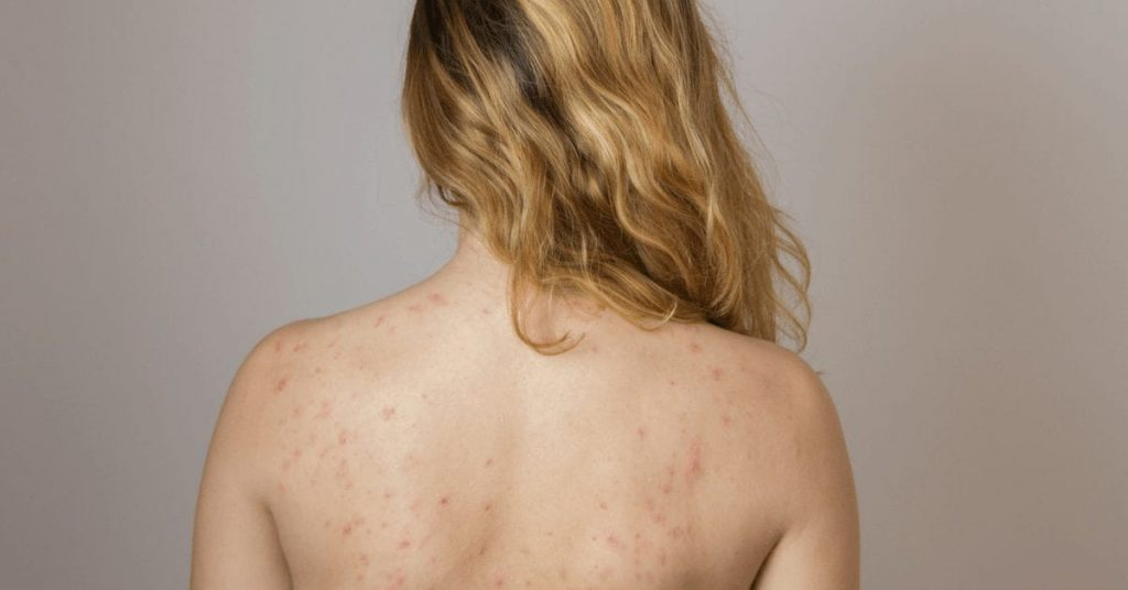 Угри на спине распространенных заболеваний кожи в подростковом возрасте можете это лечить