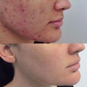 Всё о прыщах передовых методов лечения кожи специалистов по кожному делу