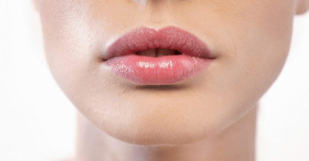 Как ухаживать за губами после увеличения