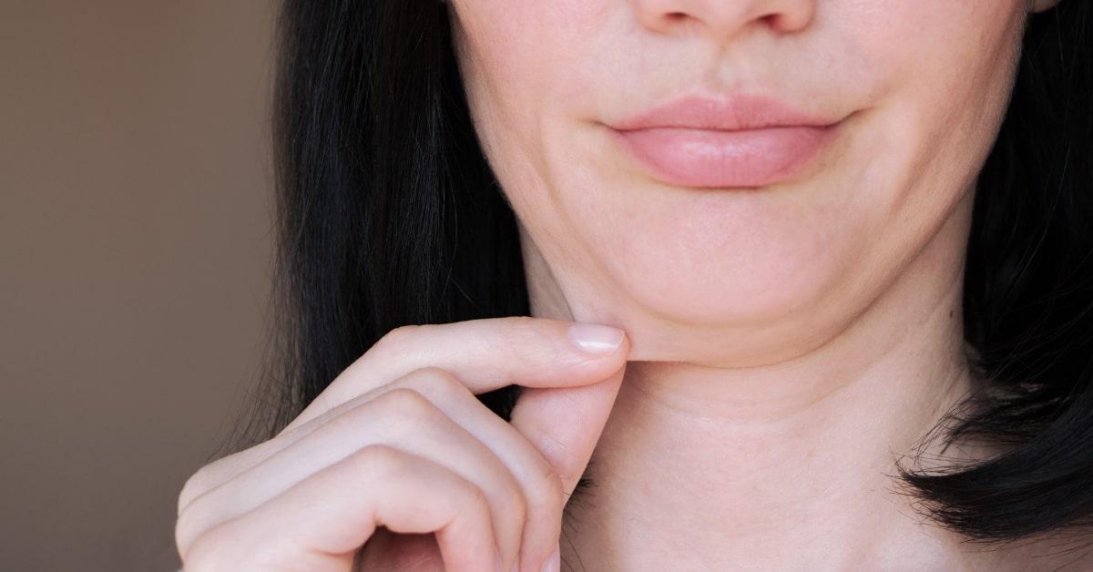 Технологические морщины на шее